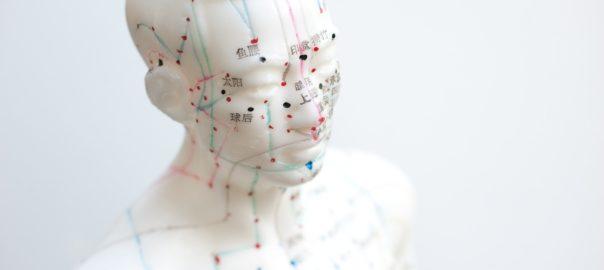 Akupunktur bei Kopfschmerzen